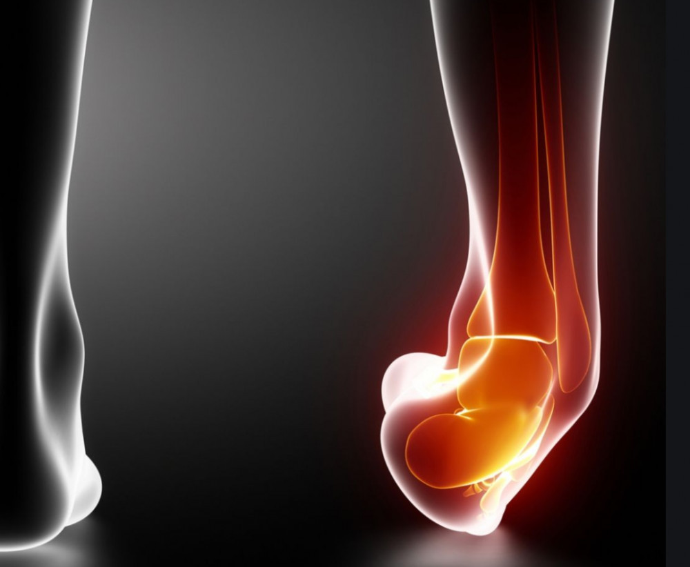 Rolled Ankle Injury - How to Prevent Ankle Sprain - Trail ...